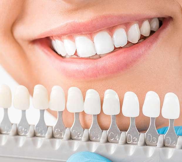 Costa Mesa Cosmetic Dentist