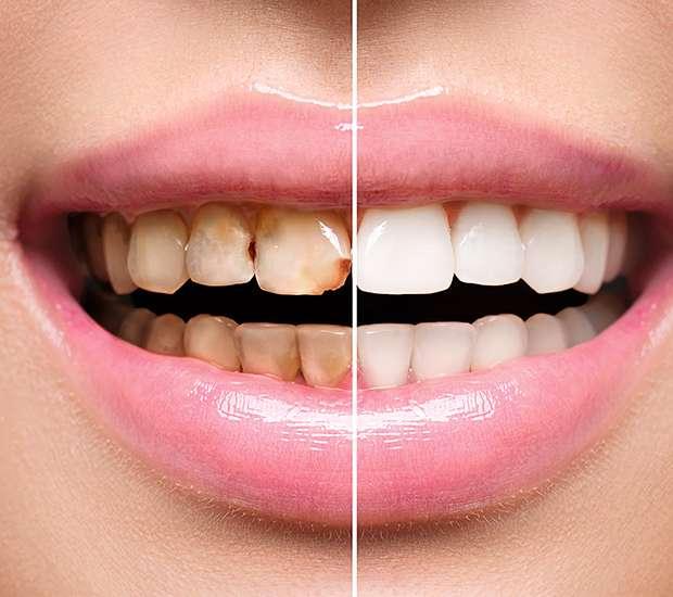 Costa Mesa Dental Implant Restoration