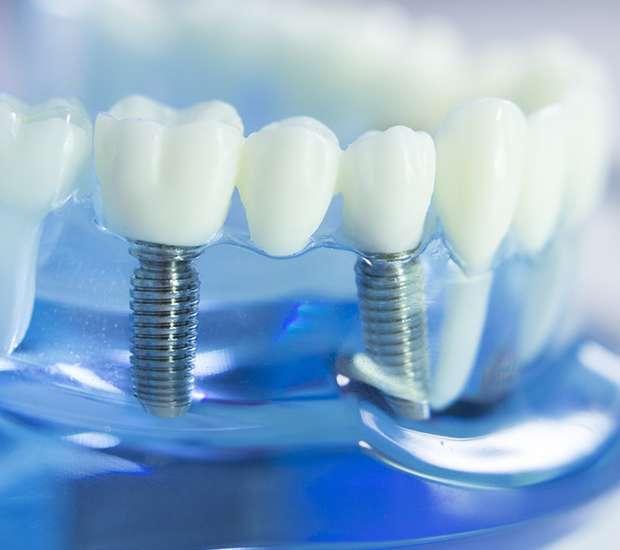 Costa Mesa Dental Implants