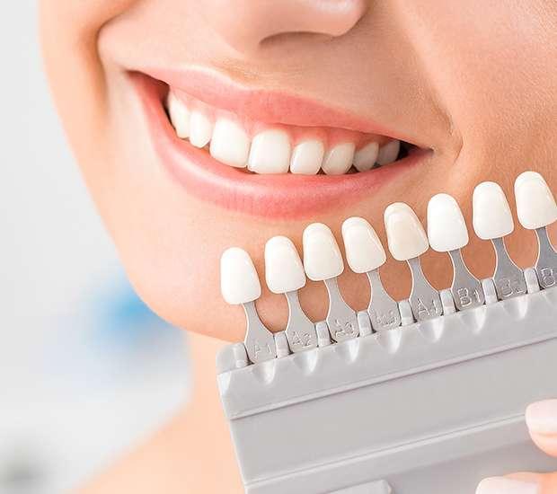 Costa Mesa Dental Veneers and Dental Laminates