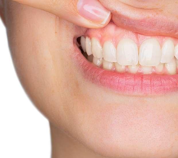 Costa Mesa Gum Disease