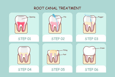 Do I Need An Apicoectomy If My Root Canal Does Not Work?